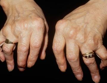 Atlas Pain Relief - Arthritis